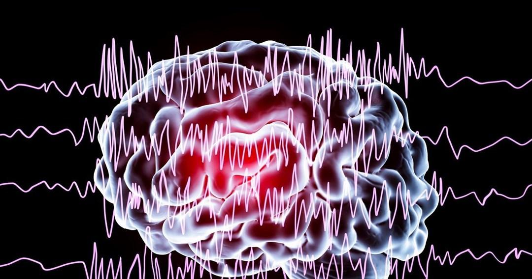 Θρόμβωση φλεβωδών κόλπων εγκεφάλου μετά από εμβολιασμό